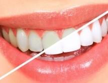 5 Diş Beyazlatma Yöntemi